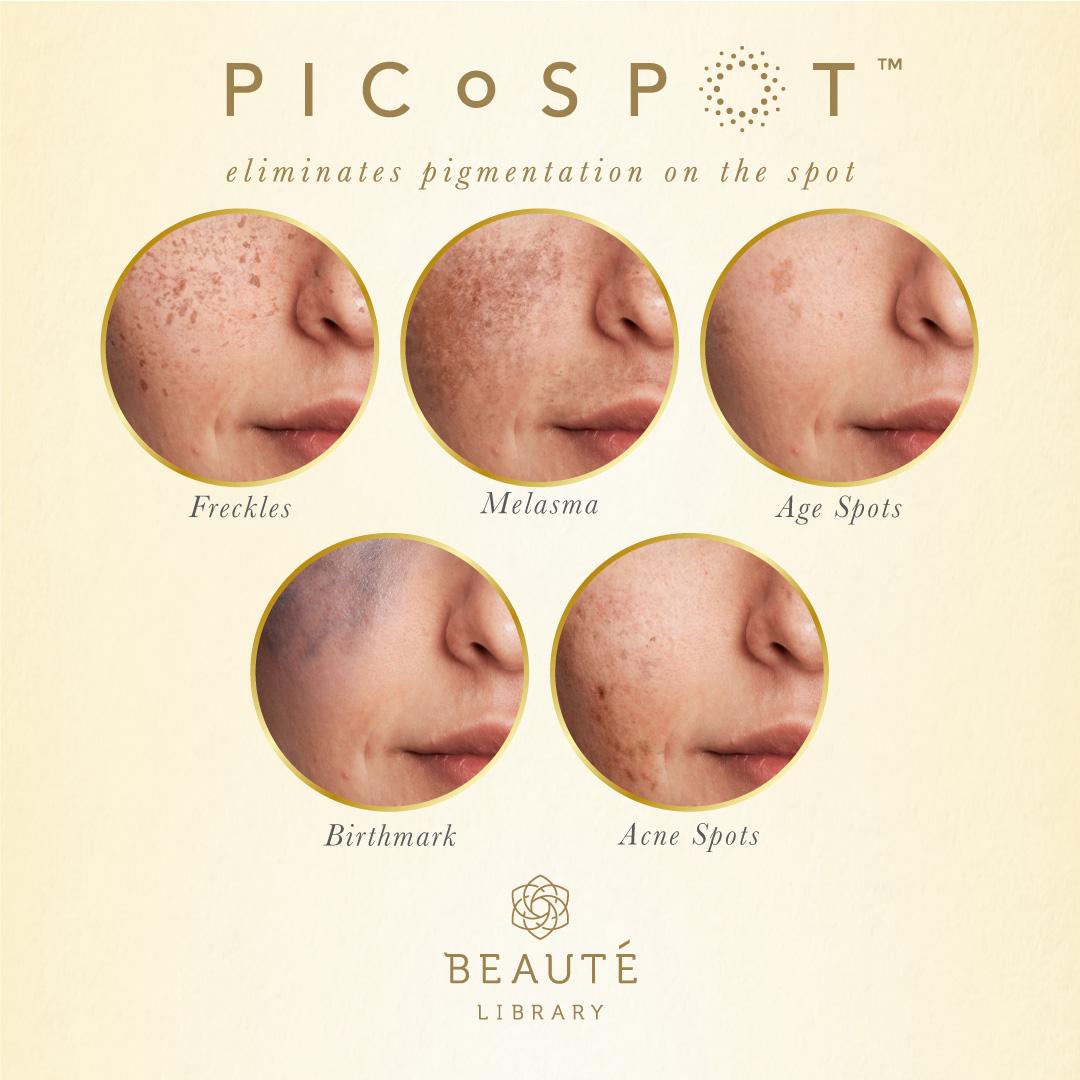 picospot